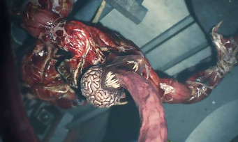 Resident Evil 2 :une nouvelle vidéo flippante avec les Lickers