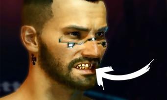 Cyberpunk 2077 : dents et ongles, la personnalisation extrême